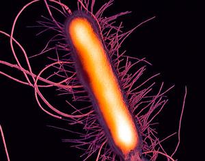 bacteria proteus vulgaris Proteus vulgaris är en gramnegativ stavformad bakterieden tillhör enterobacteriaceae och finns i tarmfloran och kan orsaka urinvägsinfektionbakterien producerar ureas.